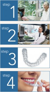 the 4-steps of Invisalign