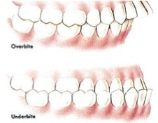 Drawing of an overbite and underbite