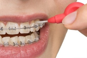 Brace wearer using an interdental brush