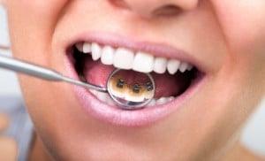 Orthodontic Lingual Braces