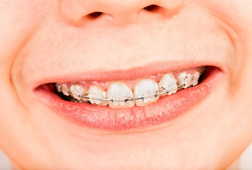 Young boy in braces in two phase orthodontic treatment