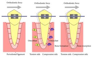 illustration of how braces work