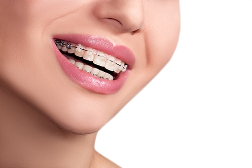 Woman smiling in orthondontic braces