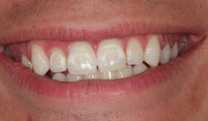 White spots on teeth after braces