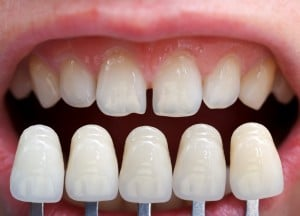 Veneer shade guide held up against teeth