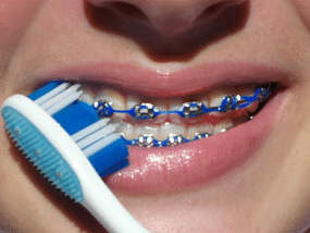 Brushing with braces on