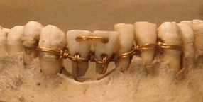 Gold wire used as ligatures in ancient jaw