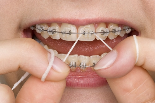 Young lady flosses her teeth and braces