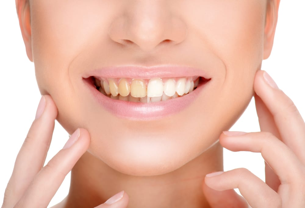 Benefits To Post Braces Tooth Whitening Orthodontic