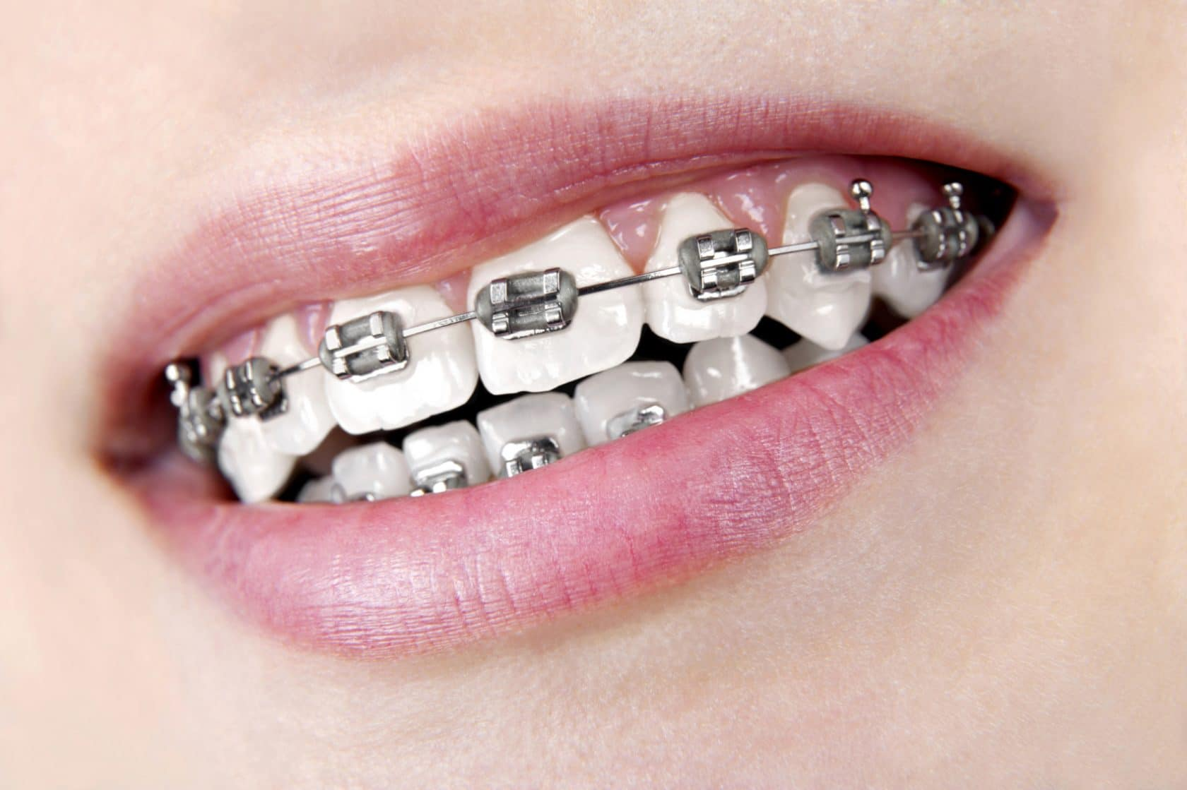 Braces And White Spots On My Teeth Orthodontic Associates