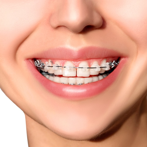 Is There A Best Material For Braces Orthodontic Associates