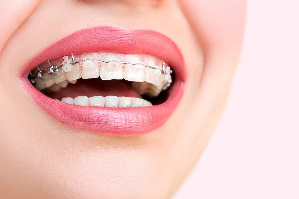 What You Need to Know About Self-Ligating Braces