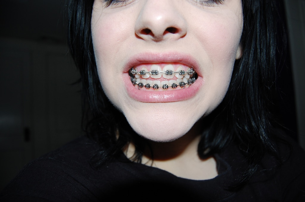 girl with braces on teeth