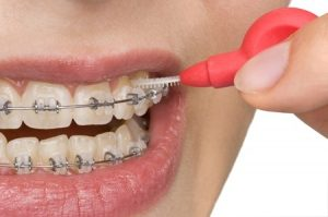 Close up of Interdental Brush cleaning between braces